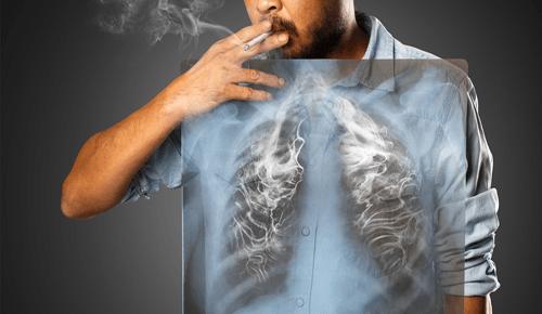 smoking-clener