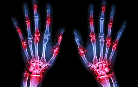 why-joints-hurt-from-smoking