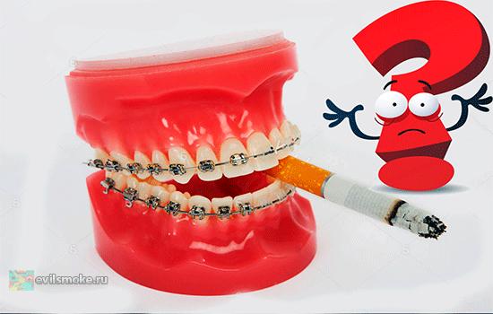 Популярные вопросы по брекетам как они работают можно ли курить и почему МРТ делать не стоит