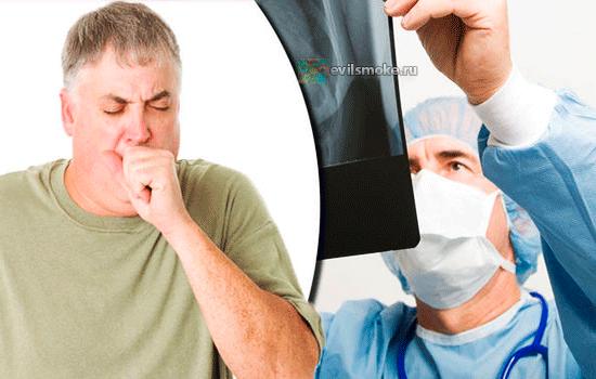 foto-kurenie-i-astma-sovetyi-vrachey